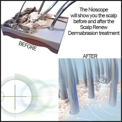 nioscope